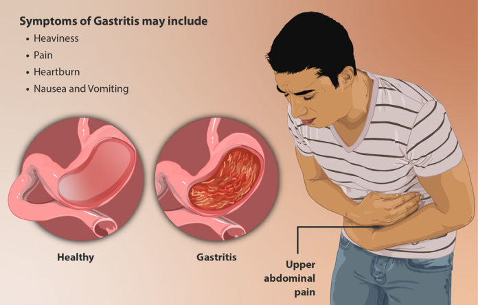 Diet for gastritis