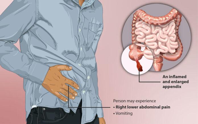 Appendix Removed